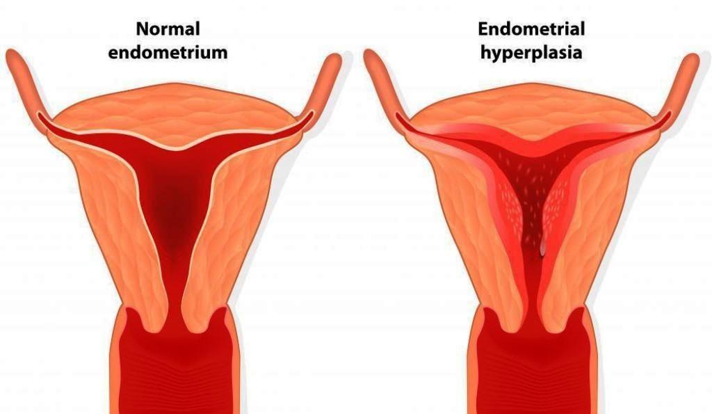 Endometrial Hiperplazi Nedir ?